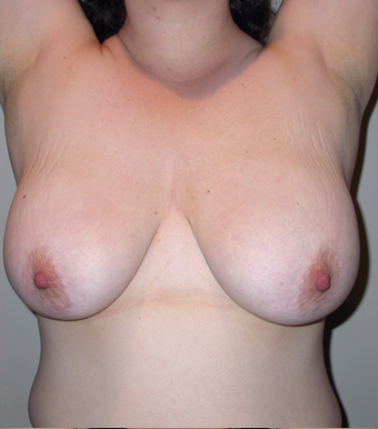 Vertical Breast Lift before 275506