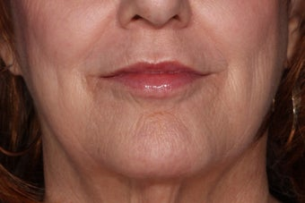Juvederm Lip Enhancement after 610606