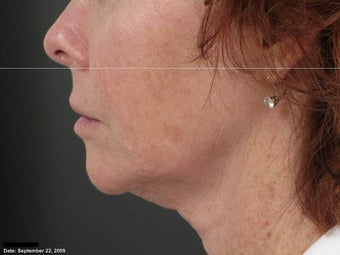 Ulthera Laser Skin Tightening after 346281