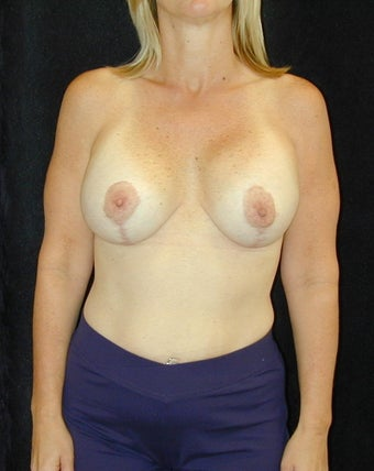 Breast Implant Revision  after 98380
