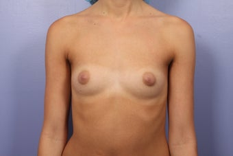 Breast Augmentation before 467314
