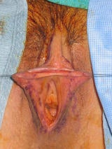 Labia Reduction Surgery (Labiaplasty) before 102319