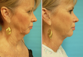 Jawline / Neck Lipo before 293427