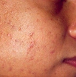 PDT for acne  before 376134
