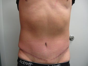 Abdominoplasty on 42 Year Old Male after 340025