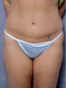 Tummy Tuck after 428194