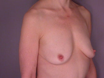 Breast Lift / Breast Augmentation before 291161