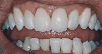 Dental Crowns and Teeth Whitening after 485403