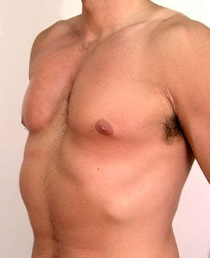 Male Chest Enhancement after 525473