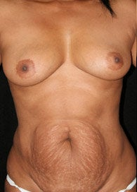 Tummy Tuck and Breast Augmentation before 366538