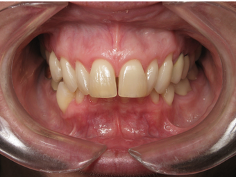 Adult Overbite, Nonextraction (braces) before 296520