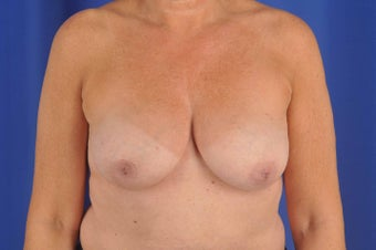 56 Year-Old Woman with Bilateral Breast Reconstruction before 647197