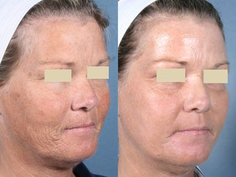 Laser Resurfacing before 104662