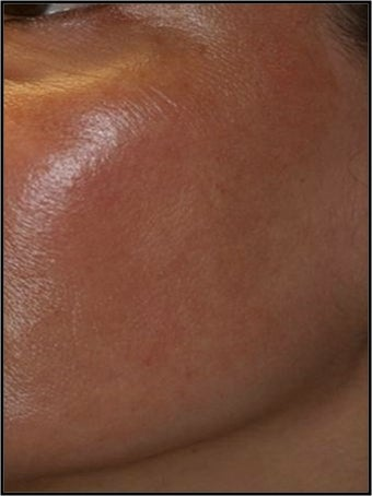 Fraxel - Melasma after 652321
