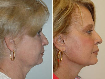 Facelift and upper and lower blepharoplasty. after 228963