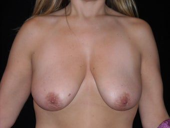Vertical breast lift before 275249