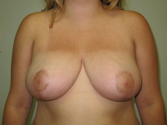 Breast Reduction after 126765