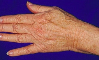 Sclerotherapy for hands after 371746