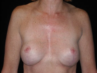 Removal and replacement of breast implants and breast lift after 237757