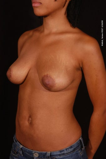 Breast Reduction after 150017