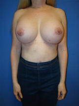 Extra Large Breast Augmentation Surgery after 125016