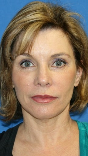 Facelift with Extended Necklift, Lateral Browlift, Fat Transfer, and Skin Pinch after 540338