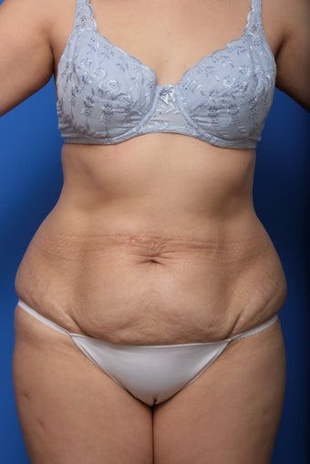 Abdominoplasty before 615682