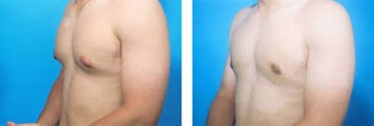 Liposuction before 636167