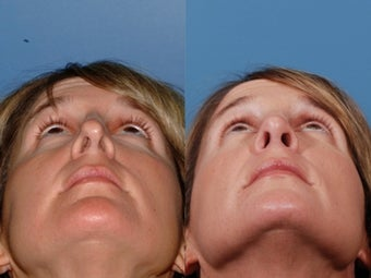 Revision rhinoplasty after 355710