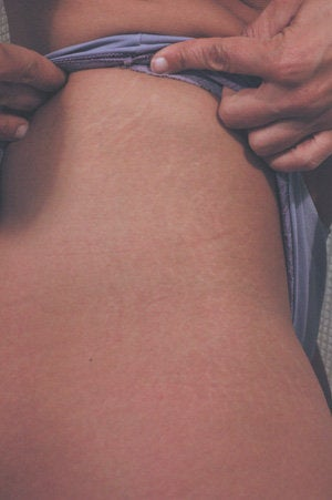 Laser for Stretch Marks after 199402