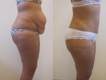 Tummy Tuck after 220788