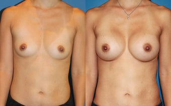 Breast Augmentation before 310716