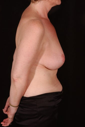Breast Reconstruction and Reduction after 163997