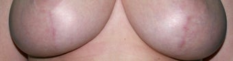 Laser treatment for breast implant scars before 376107