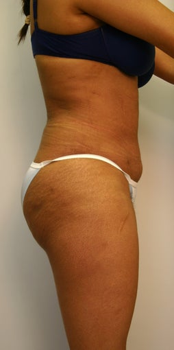 Liposuction with fat grafting / transfer to buttocks after 535831