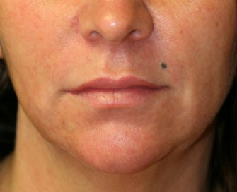 Lip Augmentation with Permalip before 380417