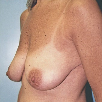Vertical Breast Lift with Saline Implants before 270956