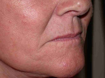 Juvederm to corners of the mouth and Botox to DAO before 100156