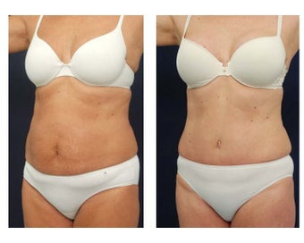Abdominoplasty - Tummy Tuck after 396160
