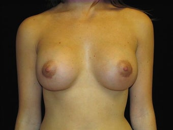 Breast augmentation after 293932