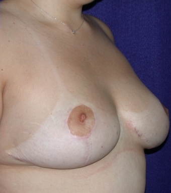 Breast Reduction after 520394