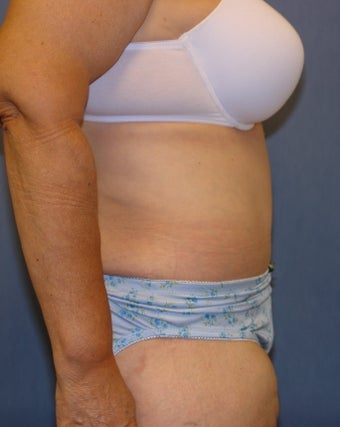 Abdominoplasty after 118906