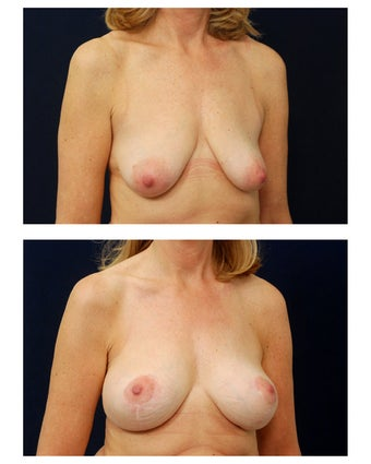 Breast Augmentation with Lift after 374950