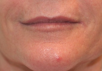 Juvederm filler to the lips after 240877