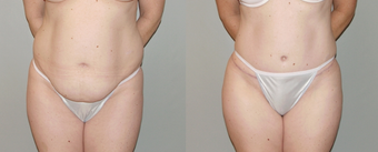 Abdominoplasty before 374957