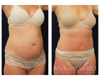 Tummy Tuck with Liposuction after 391629