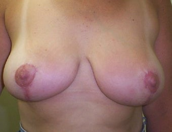 Breast lift after 132279