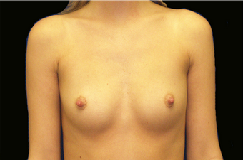 Breast Augmentation before 335974