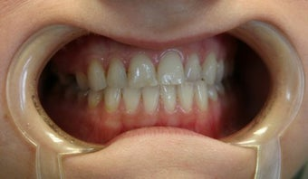 Upper arch make over with veneers and crowns before 625407