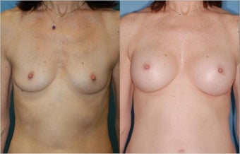 Breast Augmentation - Silicone before 127492